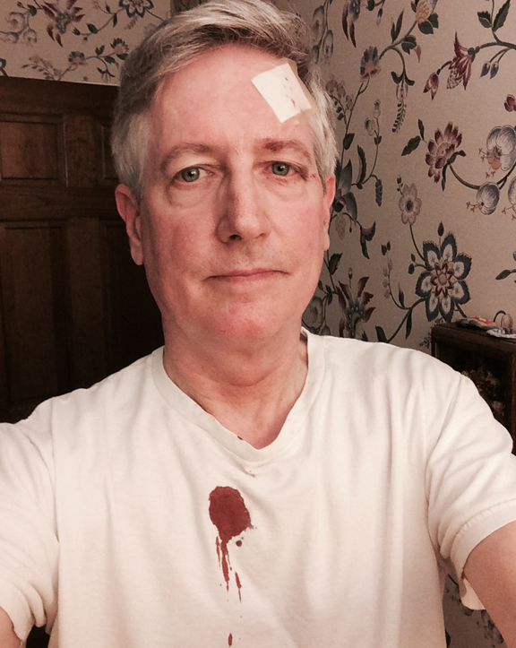 After the stitches, before changing out of bloody clothes: Feeling disgusted with myself.