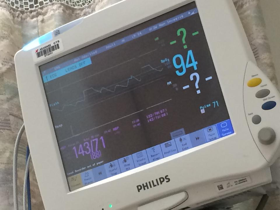 "Burl posted this alarming image during his stay in hospital, saying, "" ?????? Does this mean I'm flatlining?"""
